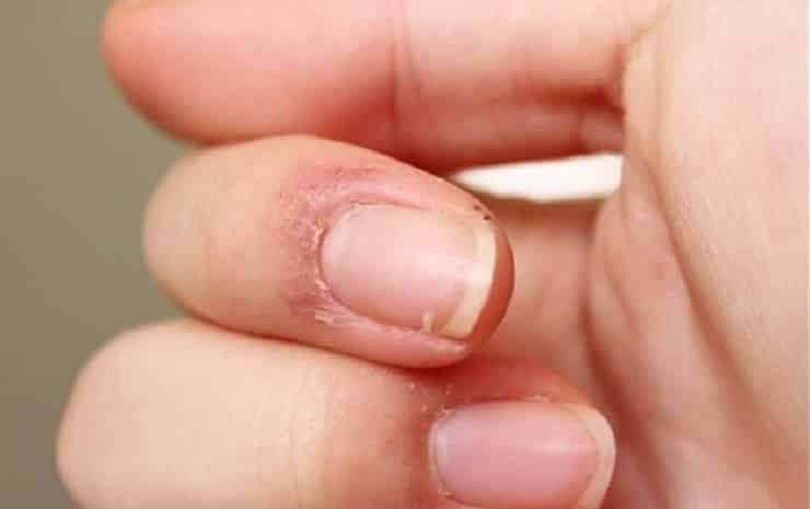 Parmak Uçlarında Deri Soyulması