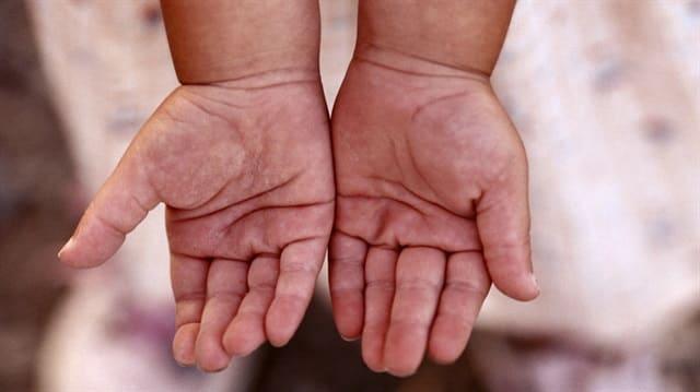 Çocuk Ellerinde Deri Soyulması Nedenleri Ve Tedavisi